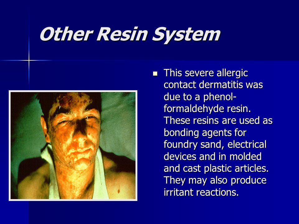 Other Resin System