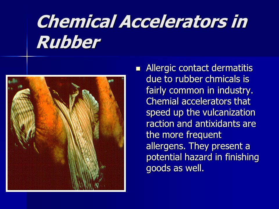 Chemical Accelerators in Rubber