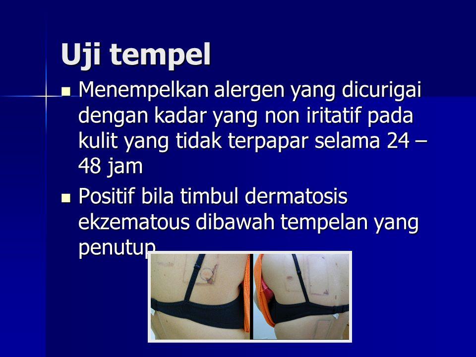 Uji tempel Menempelkan alergen yang dicurigai dengan kadar yang non iritatif pada kulit yang tidak terpapar selama 24 – 48 jam.
