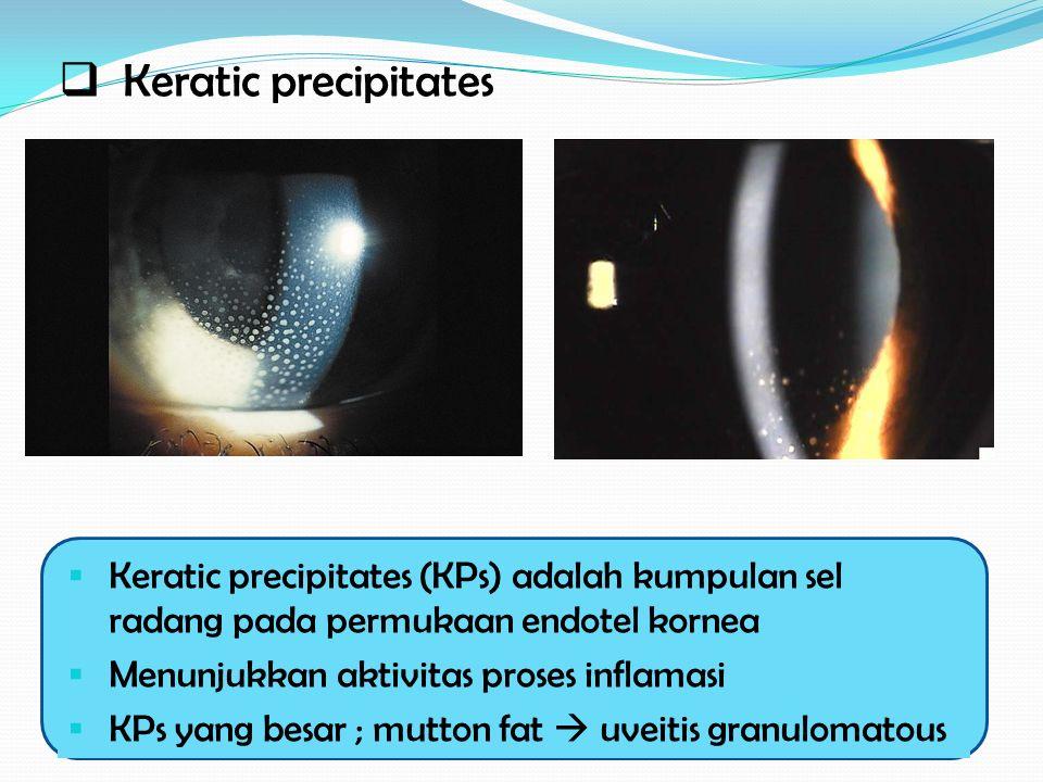Keratic precipitates Keratic precipitates (KPs) adalah kumpulan sel radang pada permukaan endotel kornea.