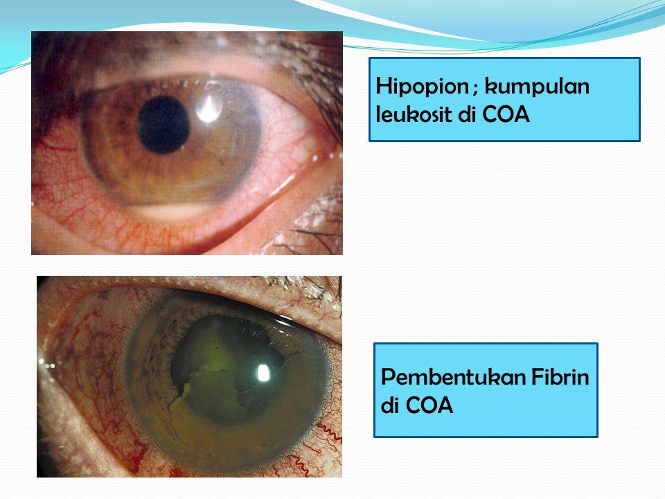 Hipopion ; kumpulan leukosit di COA