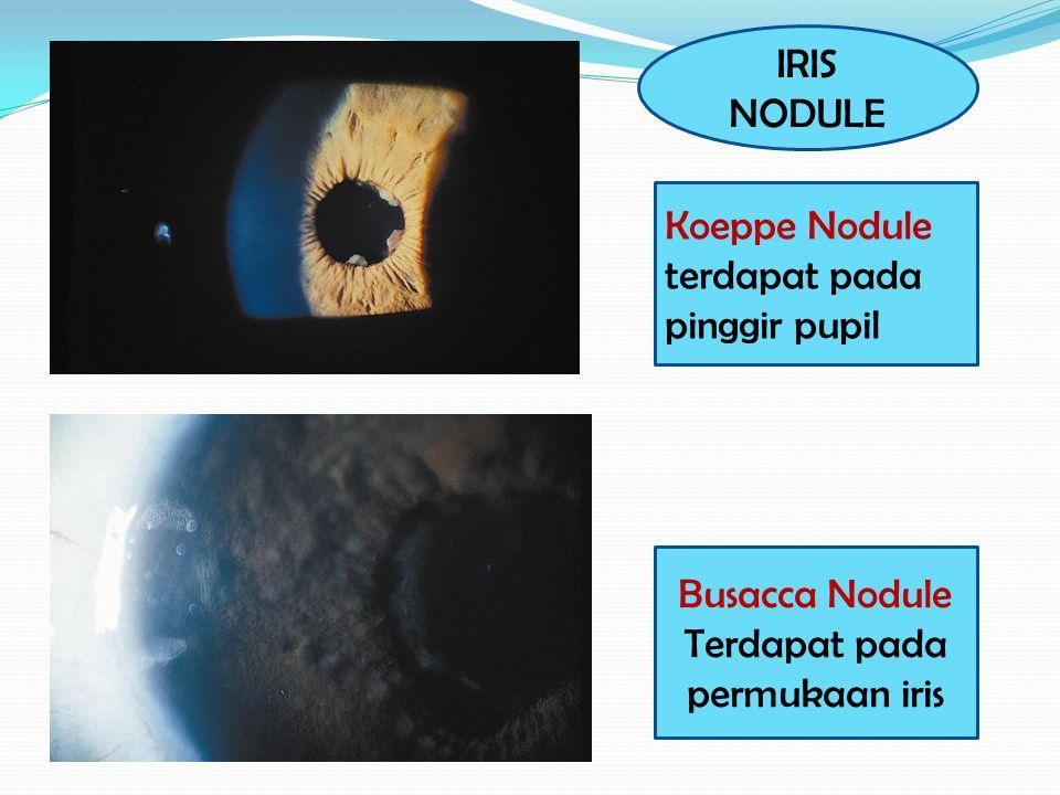 Terdapat pada permukaan iris