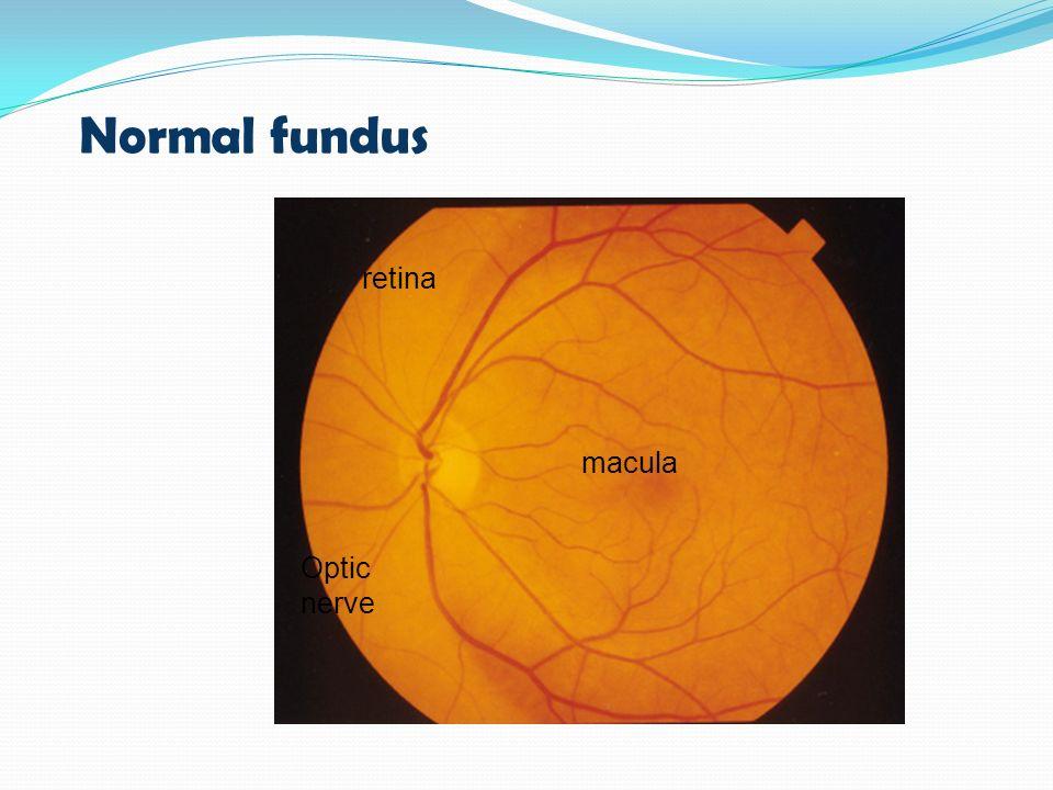 Normal fundus retina macula Optic nerve