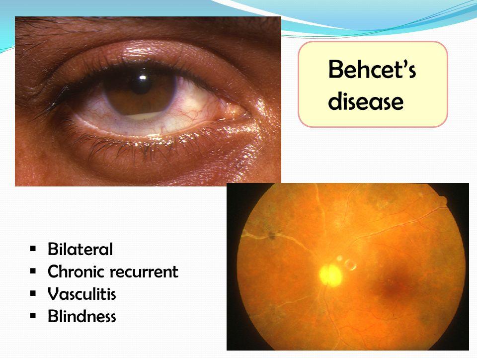 Behcet's disease Bilateral. Chronic recurrent. Vasculitis.