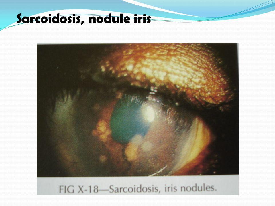 Sarcoidosis, nodule iris