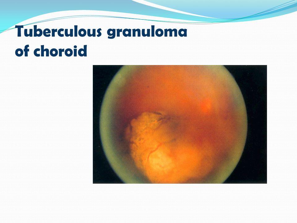 Tuberculous granuloma of choroid