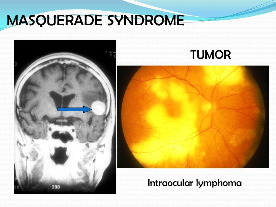 MASQUERADE SYNDROME TUMOR Intraocular lymphoma