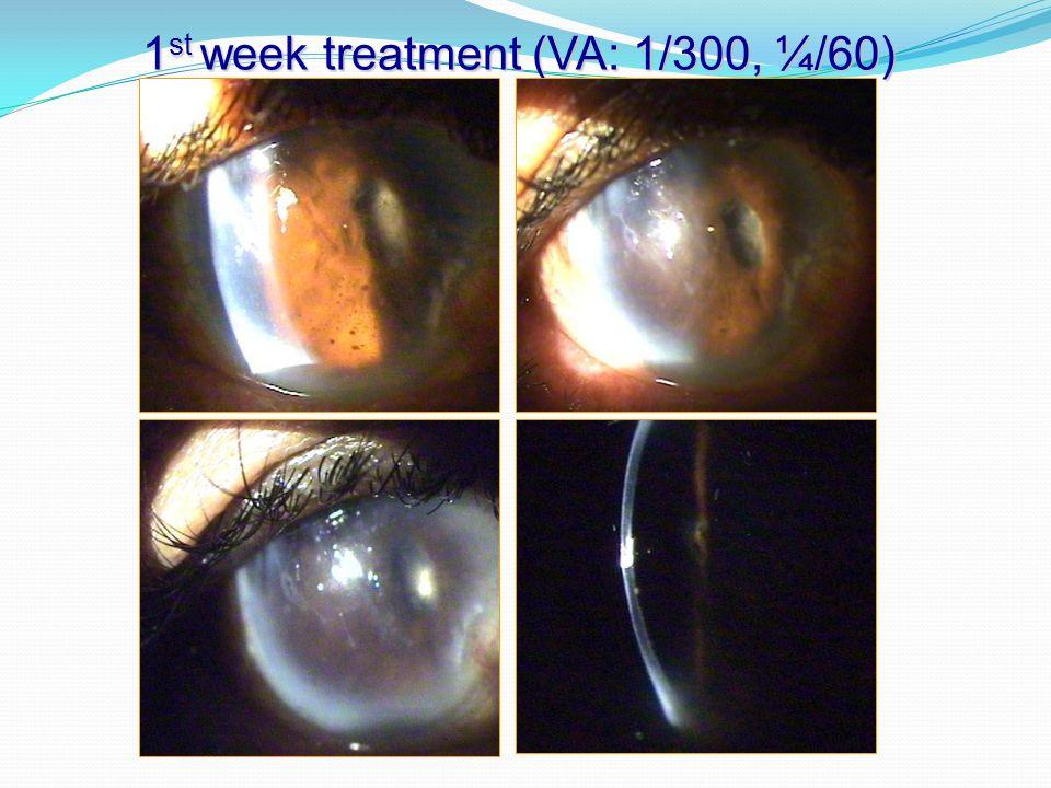 1st week treatment (VA: 1/300, ¼/60)