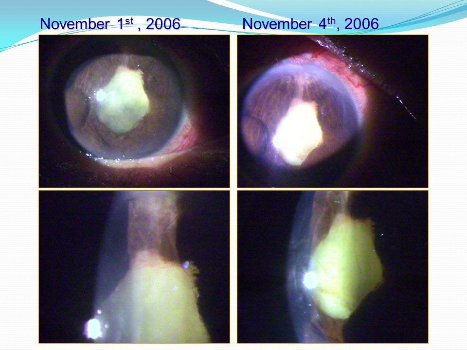 November 1st , 2006 November 4th, 2006