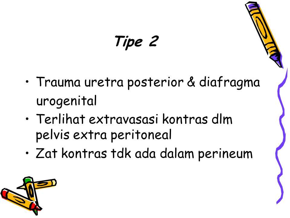 Tipe 2 Trauma uretra posterior & diafragma. urogenital. Terlihat extravasasi kontras dlm pelvis extra peritoneal.