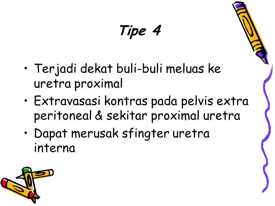 Tipe 4 Terjadi dekat buli-buli meluas ke uretra proximal. Extravasasi kontras pada pelvis extra peritoneal & sekitar proximal uretra.