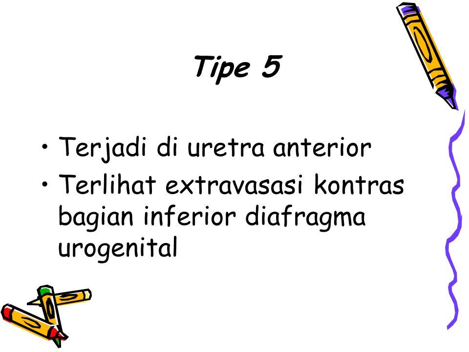 Tipe 5 Terjadi di uretra anterior