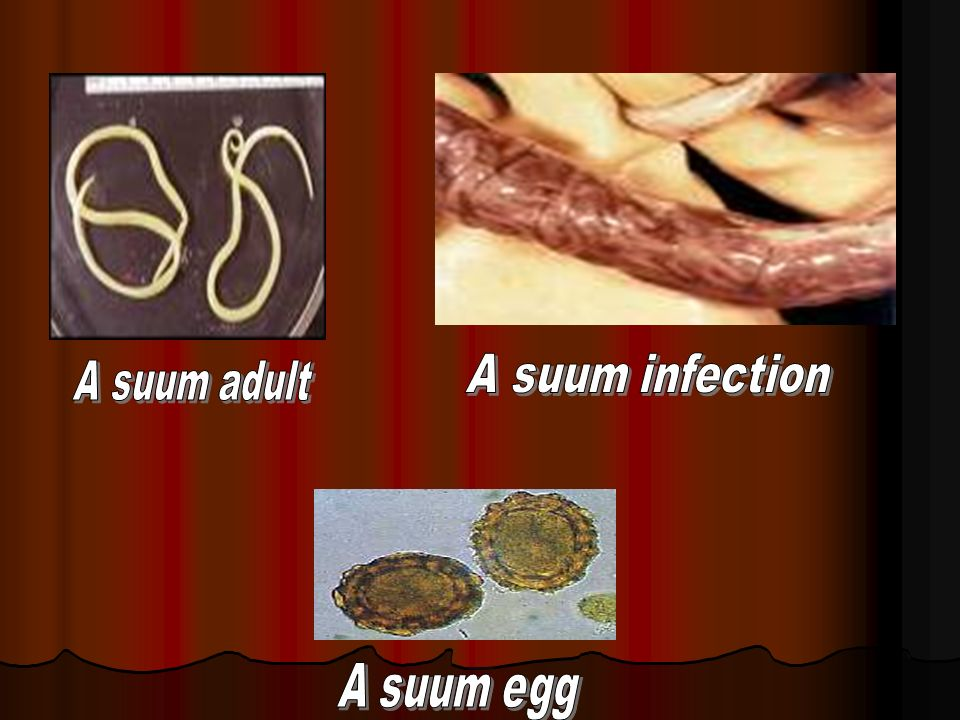 A suum infection A suum adult A suum egg