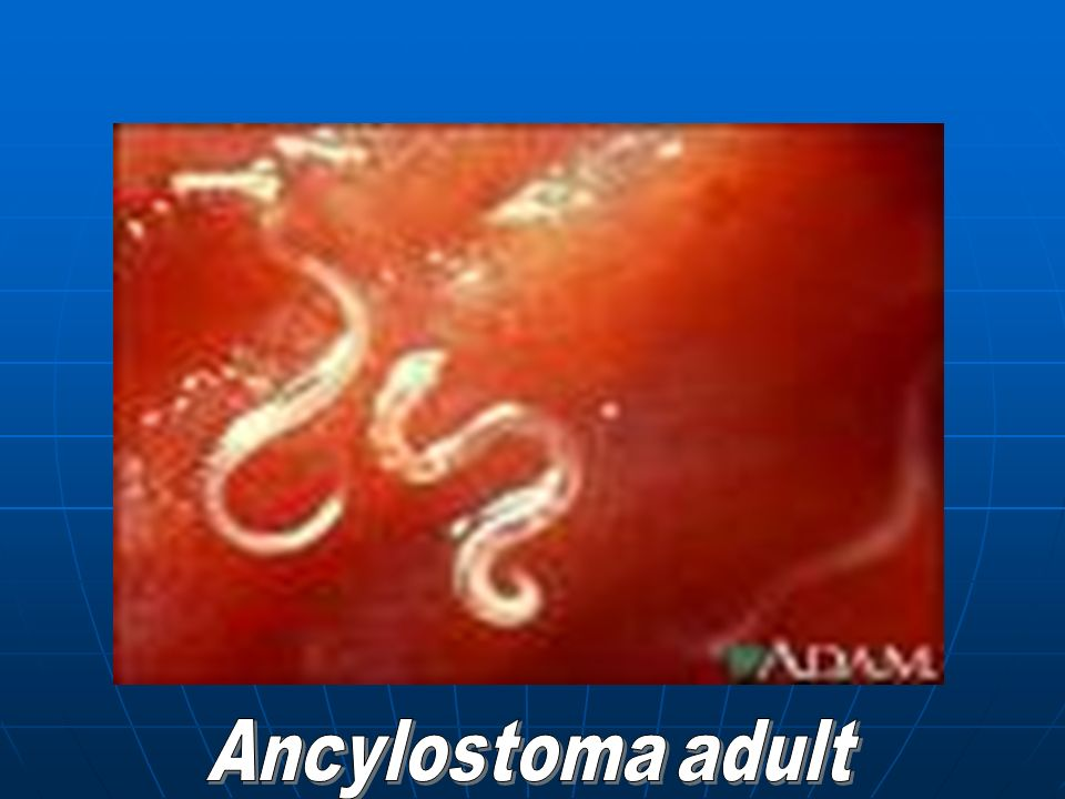 Ancylostoma adult