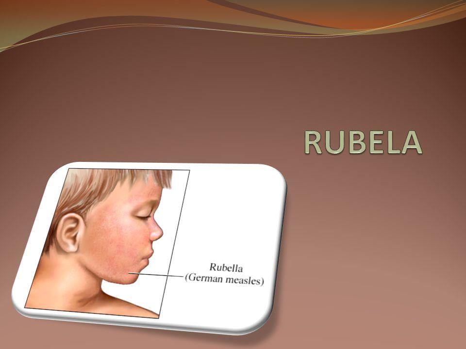 RUBELA