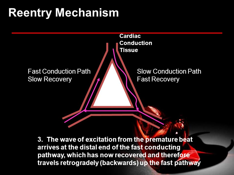 Reentry Mechanism Fast Conduction Path Slow Recovery