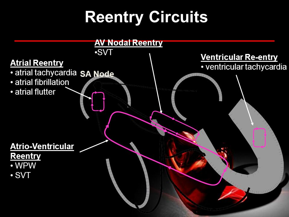 Reentry Circuits AV Nodal Reentry SVT Ventricular Re-entry