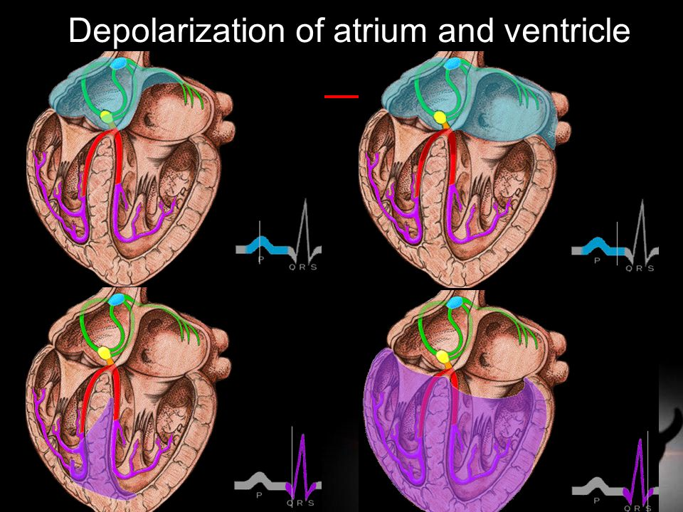 Depolarization of atrium and ventricle