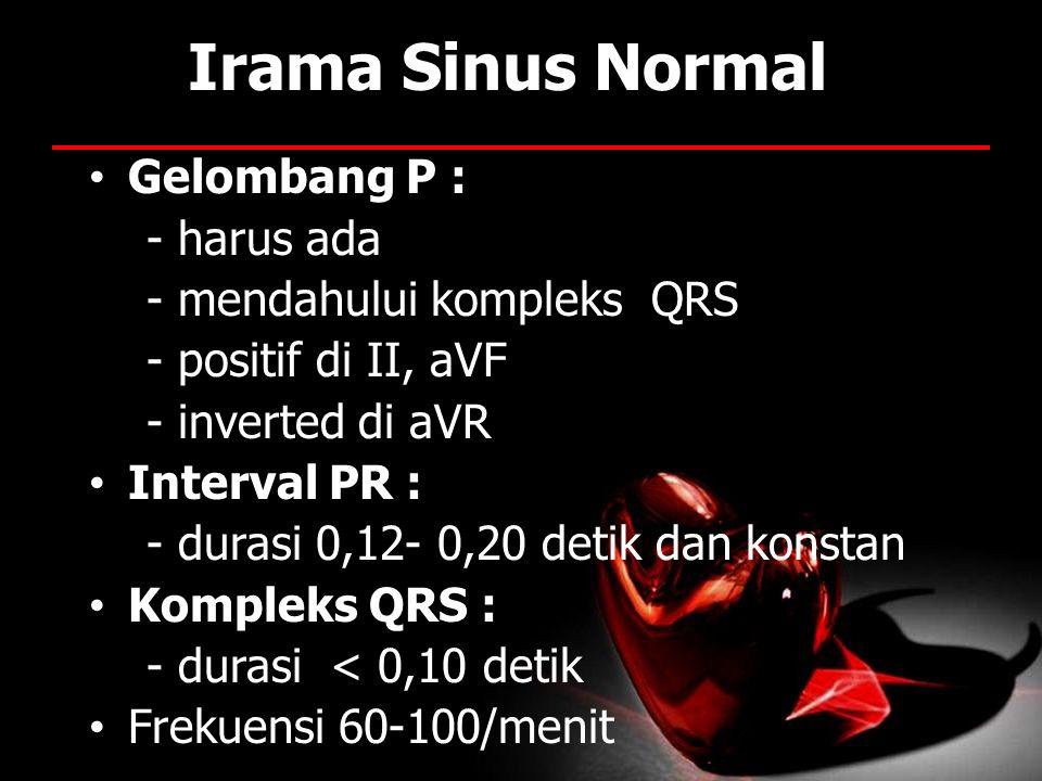 Irama Sinus Normal Gelombang P : - harus ada - mendahului kompleks QRS