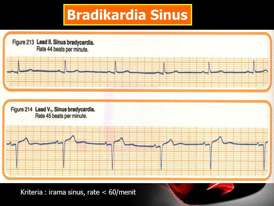 Bradikardia Sinus Kriteria : irama sinus, rate < 60/menit