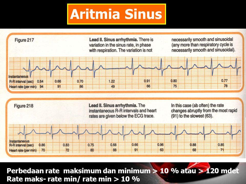 Aritmia Sinus Perbedaan rate maksimum dan minimum > 10 % atau > 120 mdet.