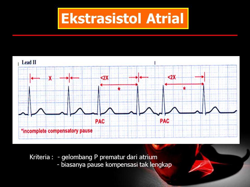 Ekstrasistol Atrial Kriteria : - gelombang P prematur dari atrium