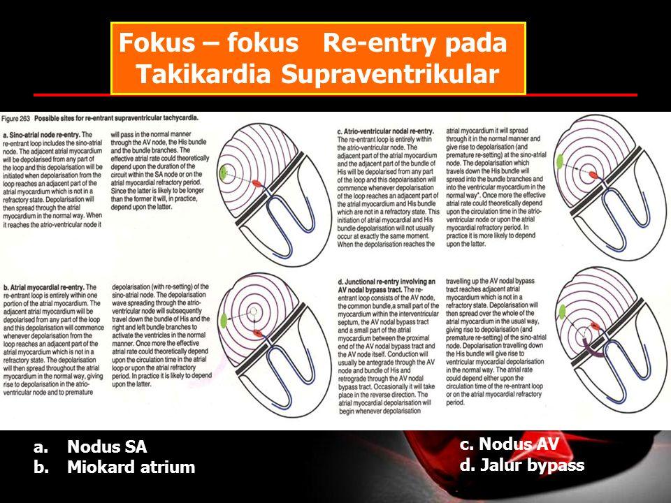 Fokus – fokus Re-entry pada Takikardia Supraventrikular