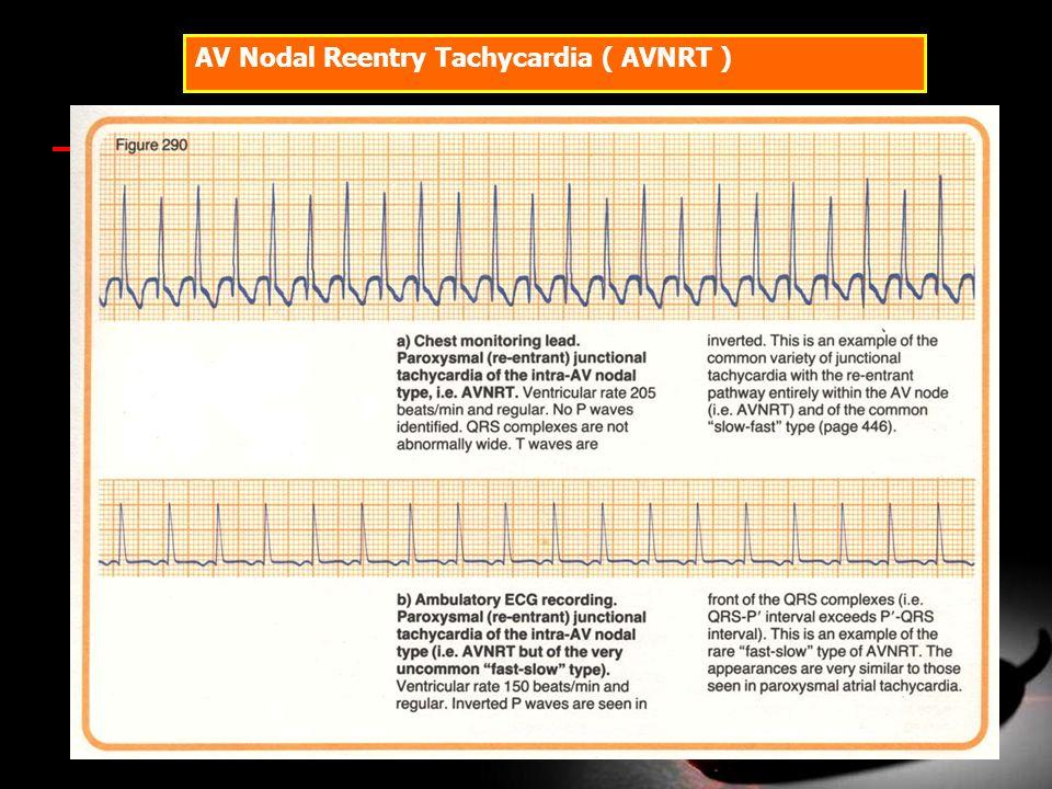 AV Nodal Reentry Tachycardia ( AVNRT )