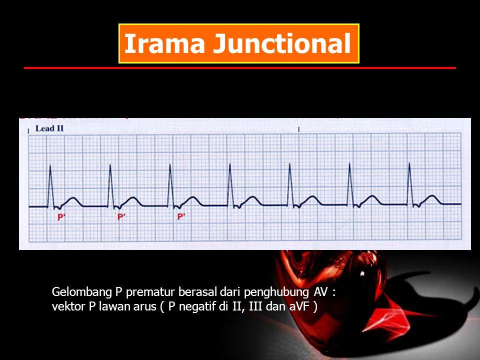 Irama Junctional Gelombang P prematur berasal dari penghubung AV :