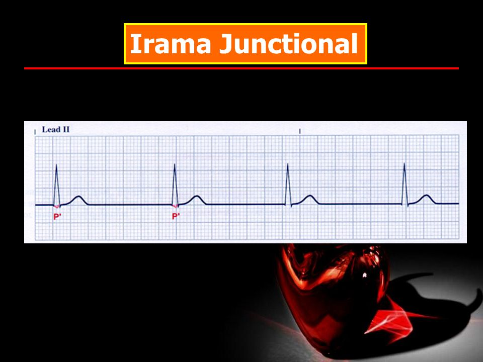 Irama Junctional