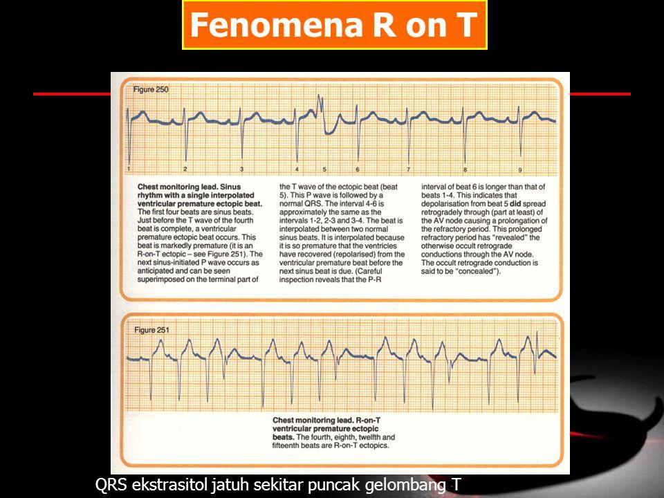 Fenomena R on T QRS ekstrasitol jatuh sekitar puncak gelombang T