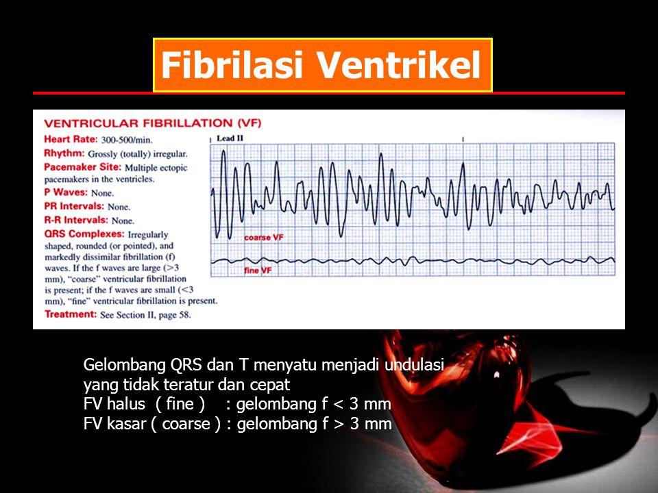 Fibrilasi Ventrikel Gelombang QRS dan T menyatu menjadi undulasi