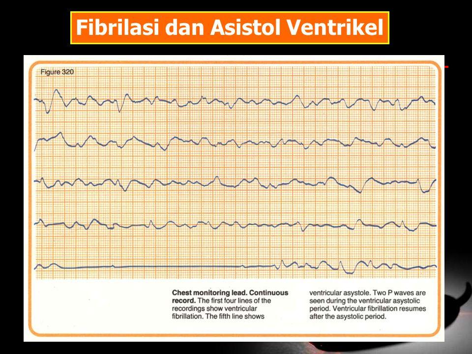 Fibrilasi dan Asistol Ventrikel