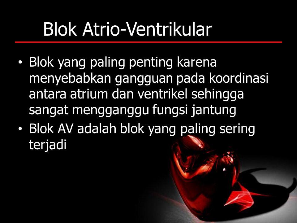 Blok Atrio-Ventrikular