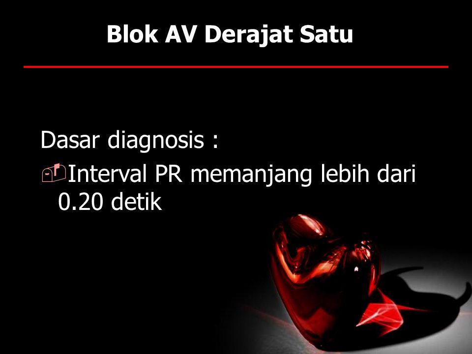 Blok AV Derajat Satu Dasar diagnosis : Interval PR memanjang lebih dari 0.20 detik