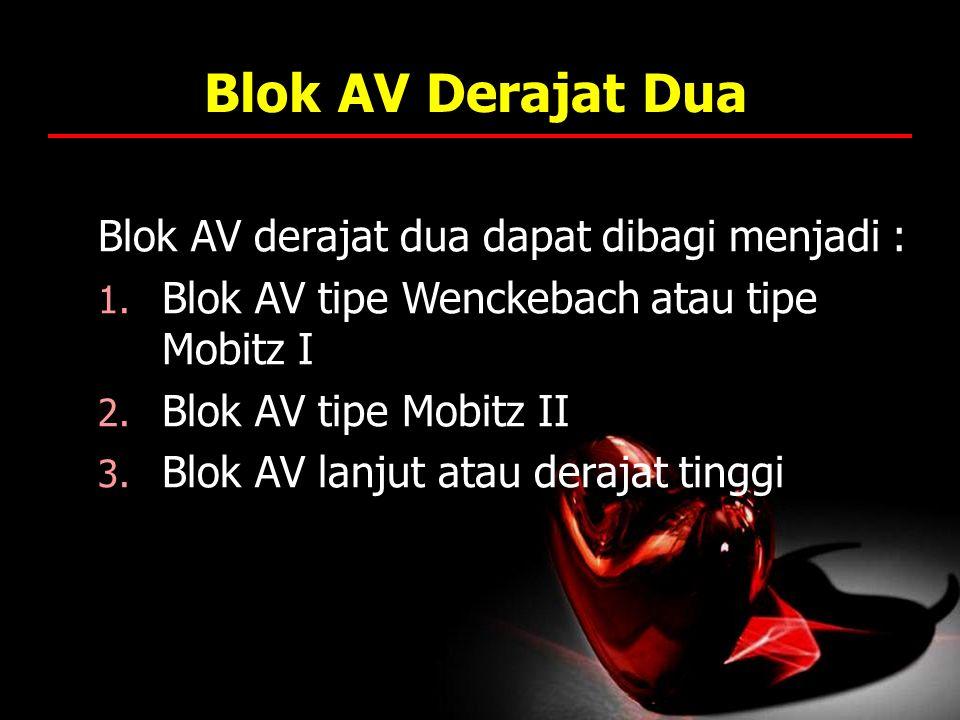Blok AV Derajat Dua Blok AV derajat dua dapat dibagi menjadi :
