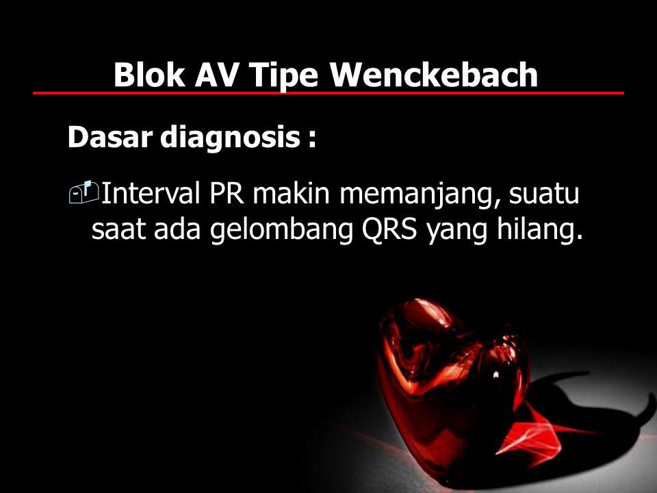 Blok AV Tipe Wenckebach