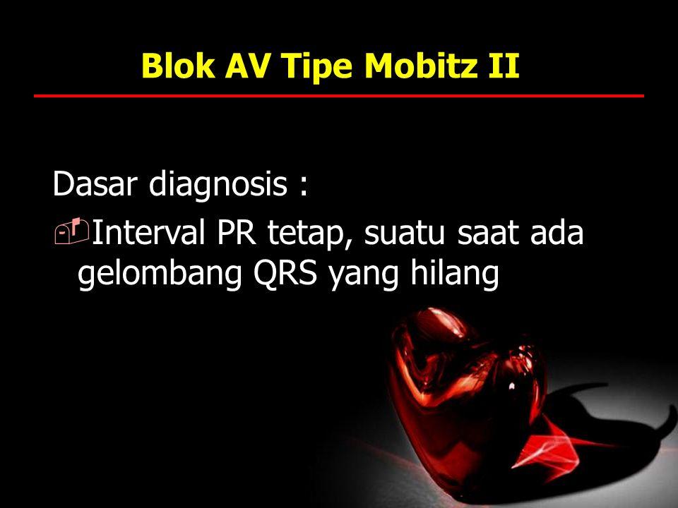 Blok AV Tipe Mobitz II Dasar diagnosis : Interval PR tetap, suatu saat ada gelombang QRS yang hilang.