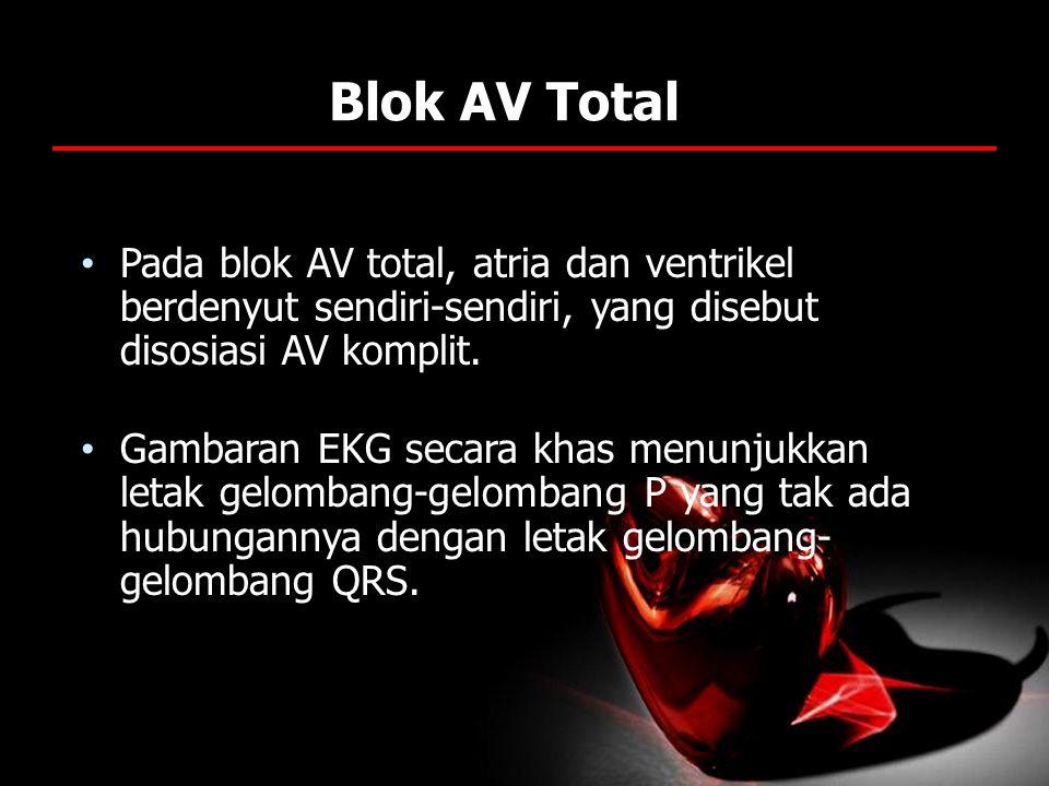 Blok AV Total Pada blok AV total, atria dan ventrikel berdenyut sendiri-sendiri, yang disebut disosiasi AV komplit.