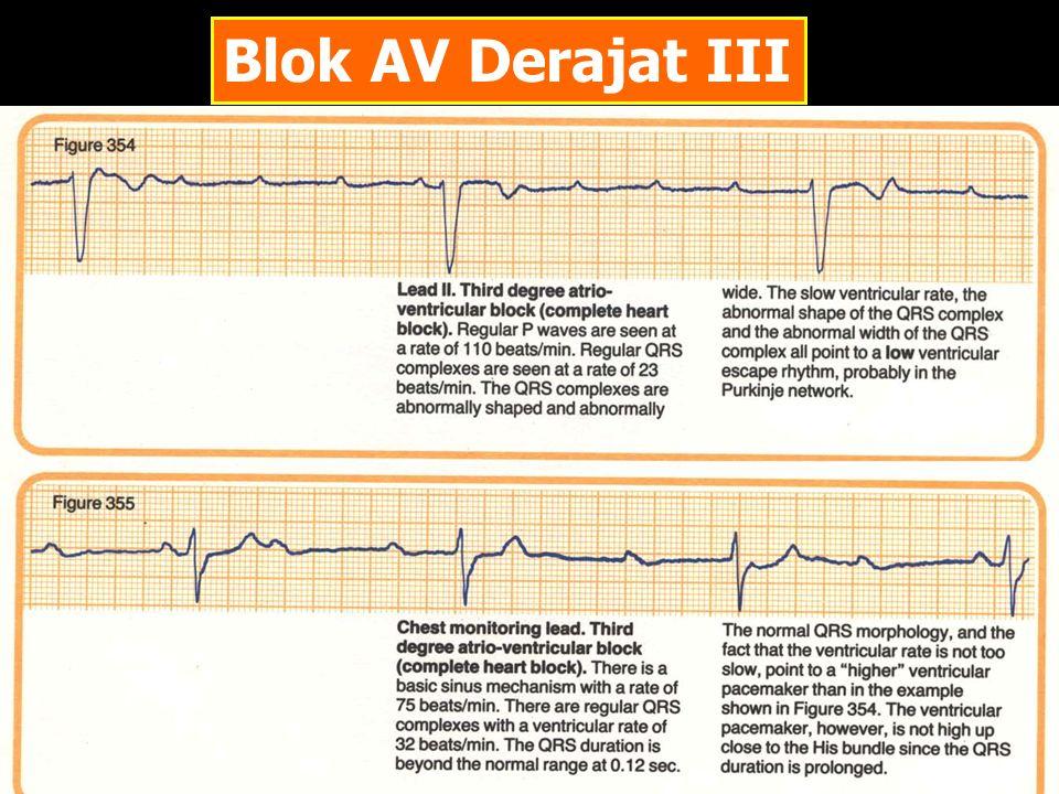 Blok AV Derajat III