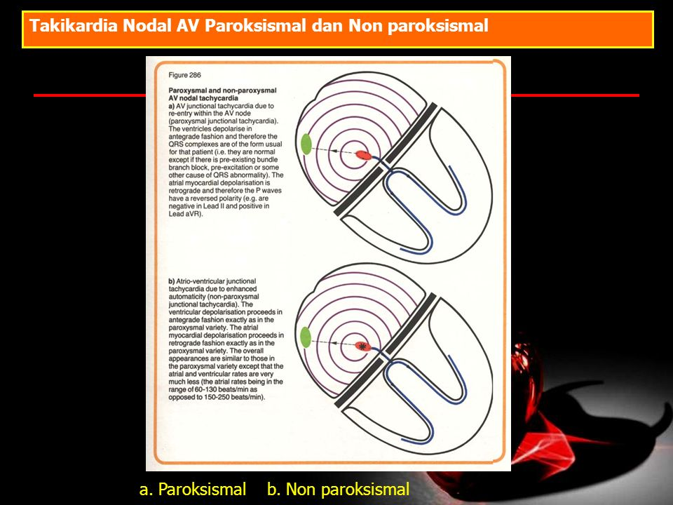Takikardia Nodal AV Paroksismal dan Non paroksismal