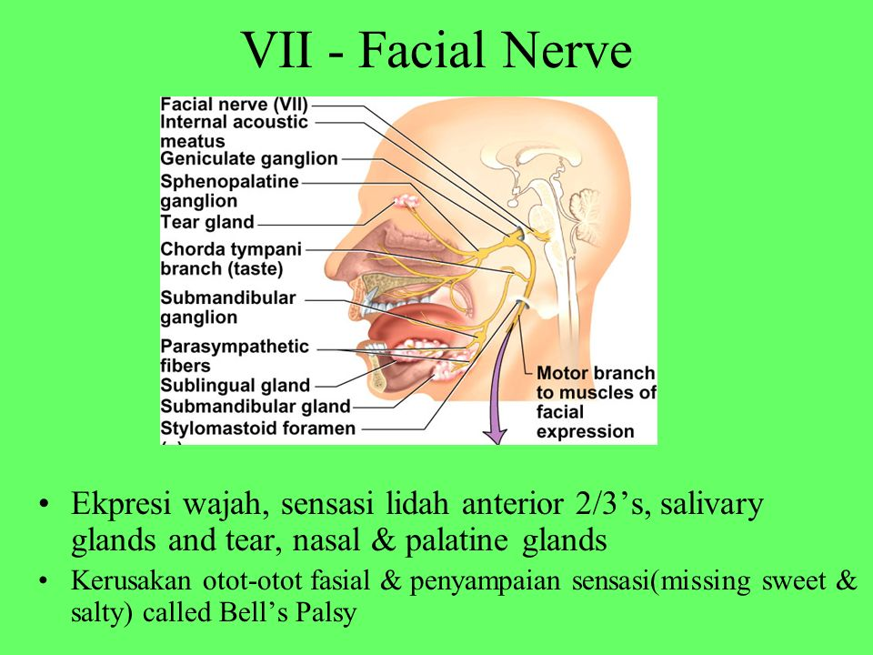 VII - Facial Nerve Ekpresi wajah, sensasi lidah anterior 2/3's, salivary glands and tear, nasal & palatine glands.