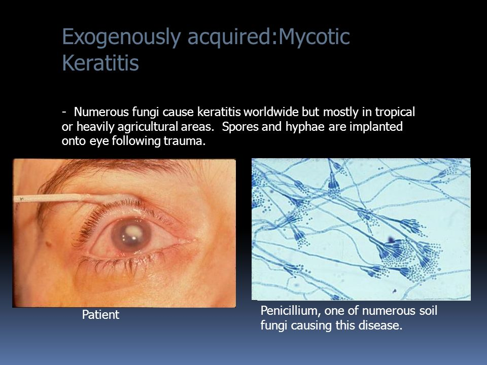 Exogenously acquired:Mycotic Keratitis