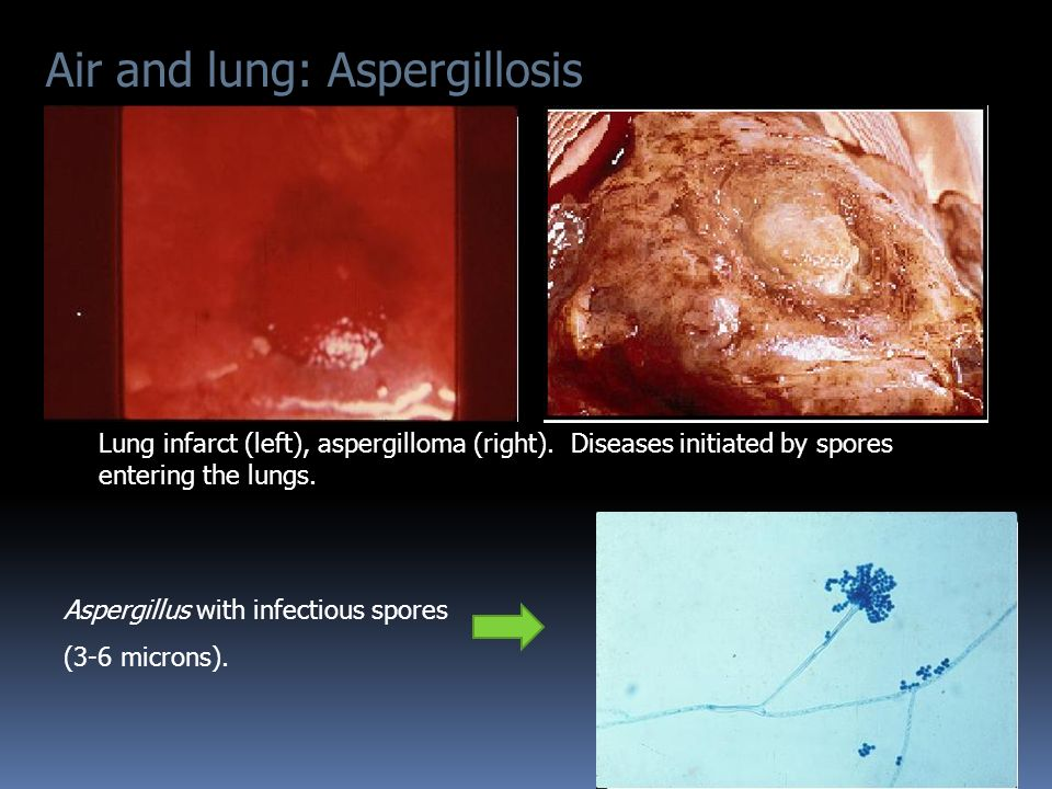 Air and lung: Aspergillosis