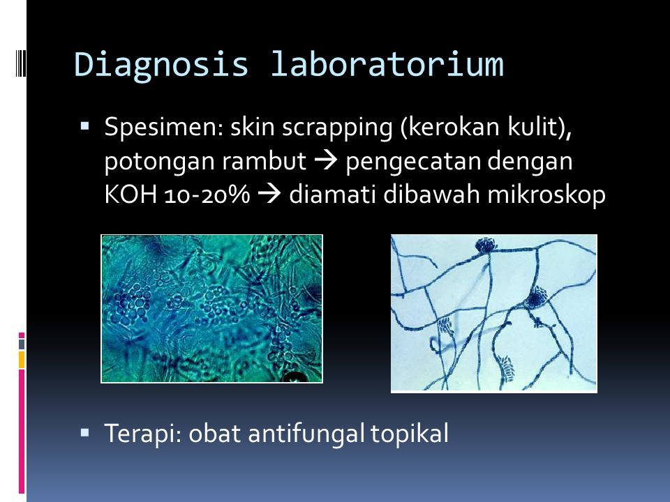 Diagnosis laboratorium