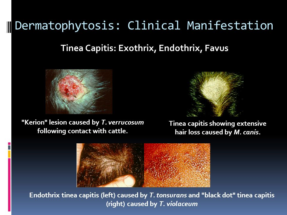 Dermatophytosis: Clinical Manifestation