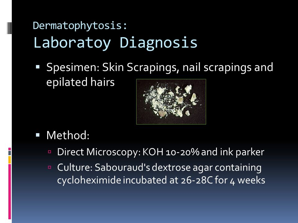 Dermatophytosis: Laboratoy Diagnosis