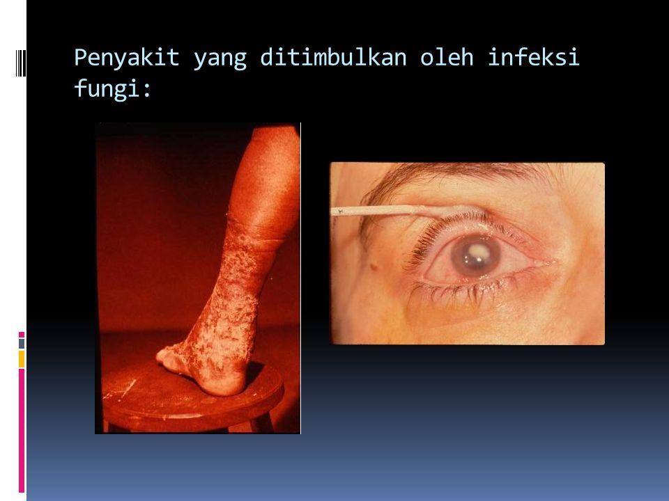 Penyakit yang ditimbulkan oleh infeksi fungi: