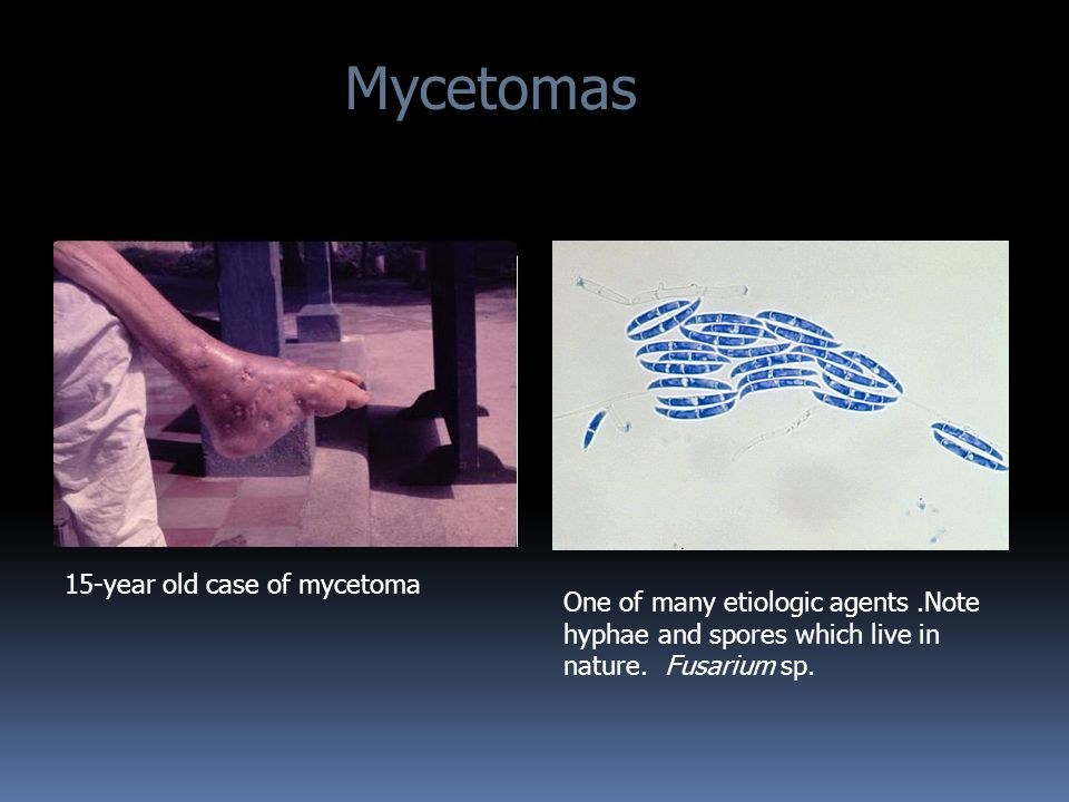 Mycetomas 15-year old case of mycetoma