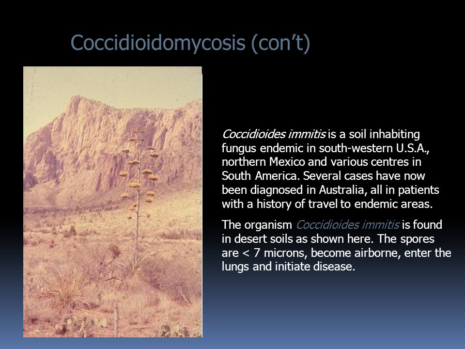 Coccidioidomycosis (con't)